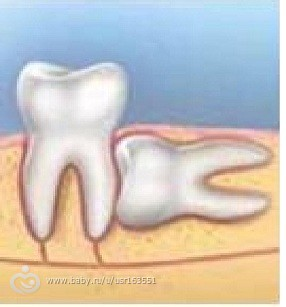 Зуб мудрости десна лежит на зубе
