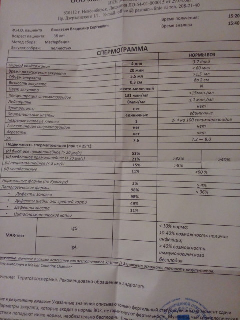 vsya-zalitaya-spermoy-foto