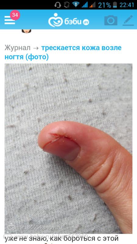 Из за чего трескается кожа возле ногтей