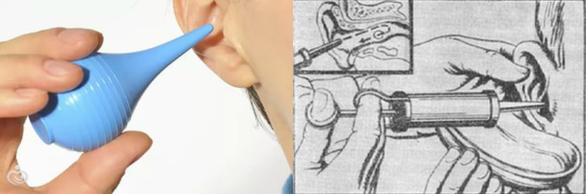 Как разложить ухо в домашних условиях 754