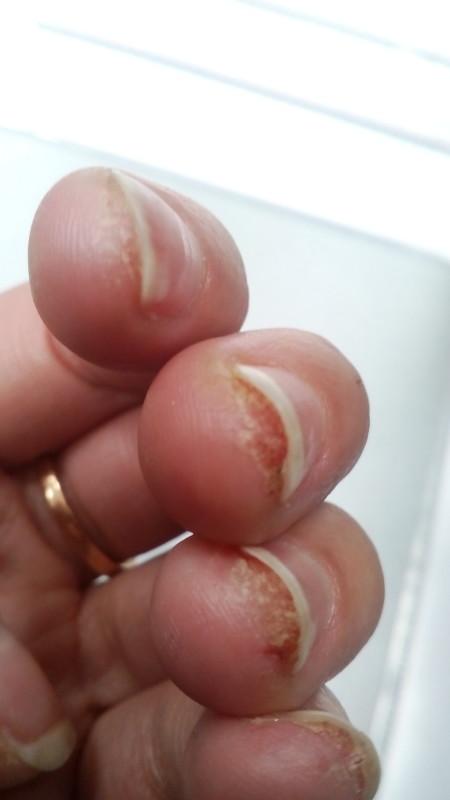 Под ногтем трескается кожа