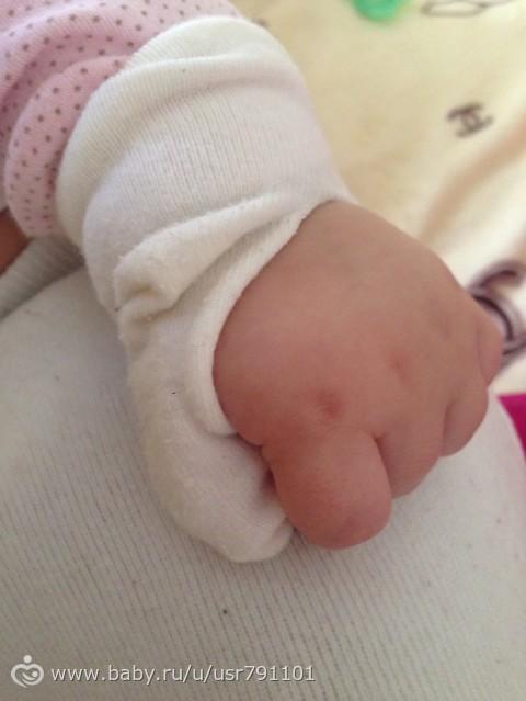 Миссия: отучить сосать палец?!?!