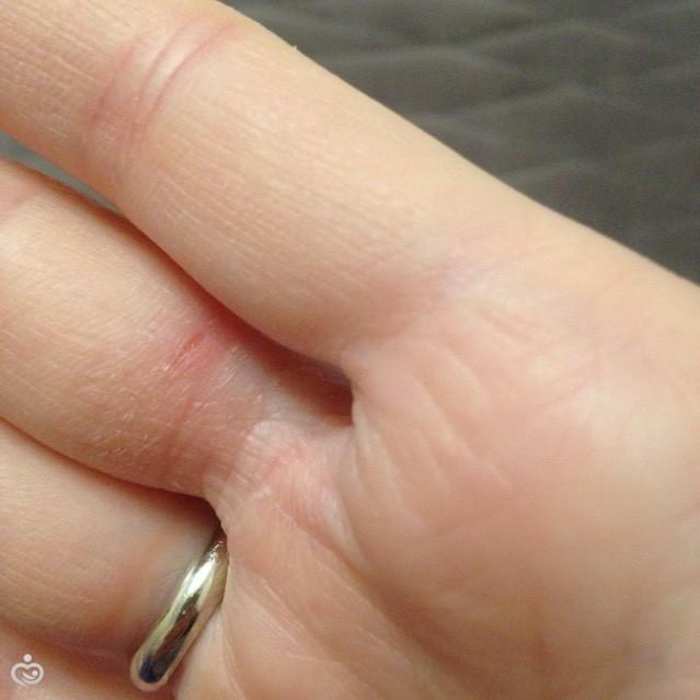 После родов на руке