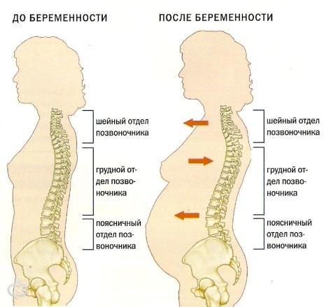 в спине после родов: как избавиться и от чего они бывают?